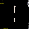 lucy humerus medial view
