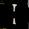 lucy dorsal posterior view of tibia